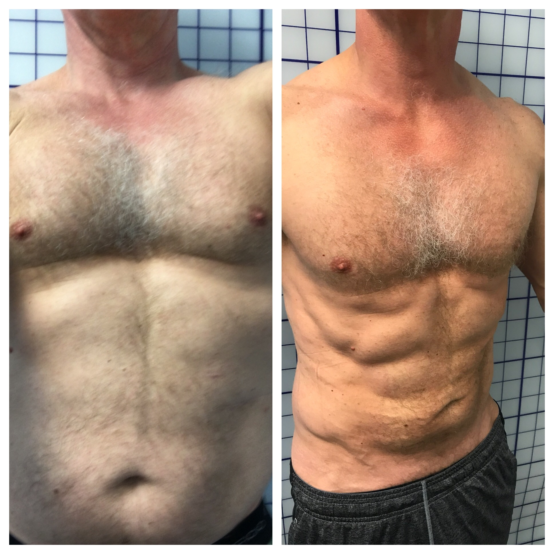 lipo before & after